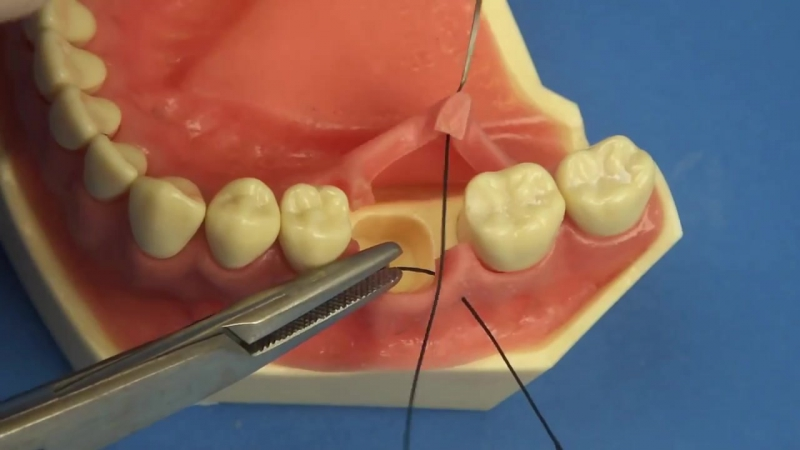 Швы. Dental, Medical, Surgical Veterinary Suturing - Interrupted Buccal Approach by Stuart Orton-Jones » Freewka.com - Смотреть онлайн в хорощем качестве
