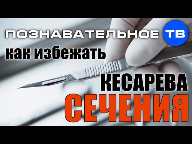 Как избежать кесарева сечения Познавательное ТВ Ирина Волынец