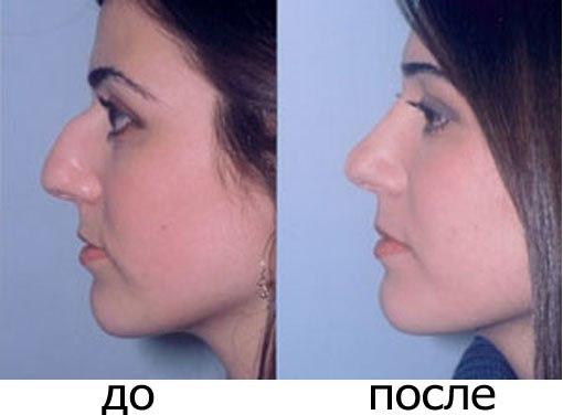 Кавказский нос прически