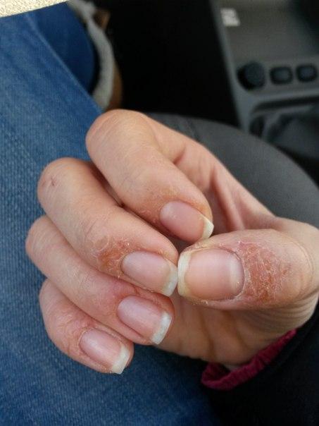 аллергия от гель лака