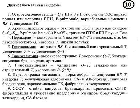Схема чтения ЭКГ