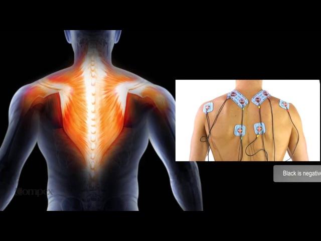 Как приклеить электроды Compex на мышцы верха спины