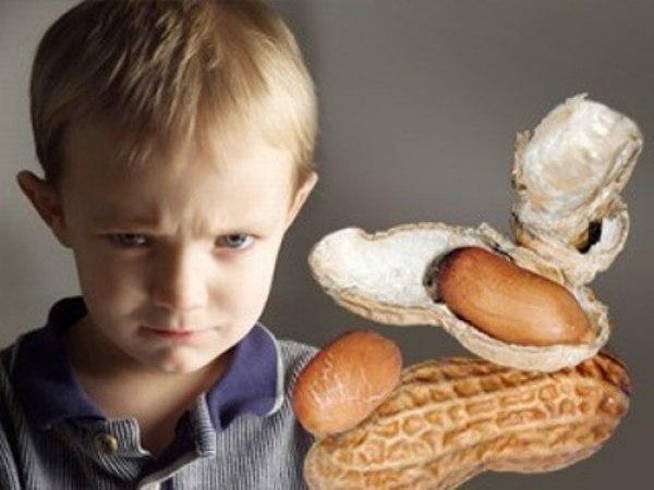 Alerjisi Olan Çocukların Yememesi Gereken Gıdalar