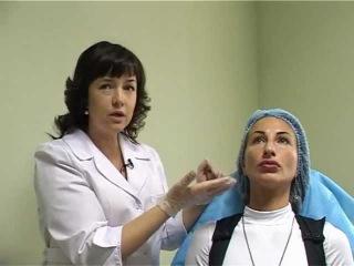 Мезотрерапия. Коррекция носогубной складки