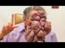 Человек без лица   Моя Ужасная История 2 серия)