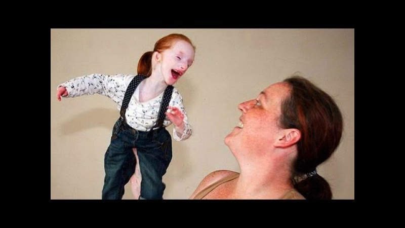 Самая маленькая девочка в мире - Моя Ужасная История