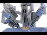 Демонстрация работы робота-хирурга давинчи