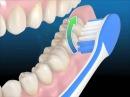 Профессиональная чистка зубов. Как правильно чистить зубы зубной щеткой