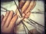 Хирургическая операция: ретроградная аппендэктомия