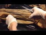 Анатомия человека. Периферические нервы. Верхняя и нижняя конечности