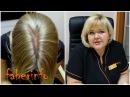 ТРИХОЛОГ про ВЫПАДЕНИЕ волос после РОДОВ