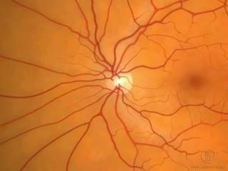 Анатомия (строение глаза)