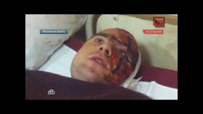 Один против шестерых: убившего грабителей мужчину выводят из состояния шока