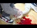 Первая помощь при венозном кровотечении