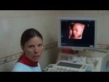 Узи при беременности (прямая речь Петрик Н. Д.)