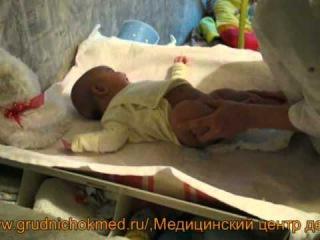 Детский массаж и гимнастика при мышечной дистонии, фрагменты процедуры. Грудной ребенок 6 месяцев.