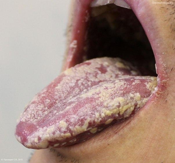 Стоматит Ангулярный фото