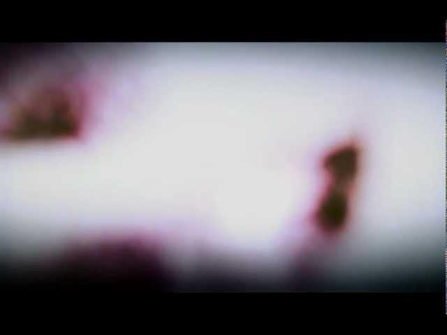 MEJIBRAY - DIE KUSSE