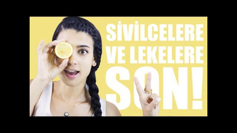 Sivilce ve Sivilce İzleri İçin Limon Suyu Maskesi
