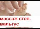 Массаж при вальгусной стопе у детей в кабинете ЛФК, г. Киев