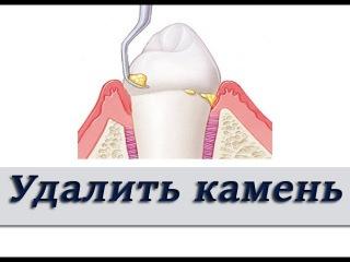 Что будет если не чистить зубной налет и камень? Пародонтология. Стоматология.