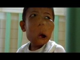 Saving an Indonesian Boy from Massive Facial Tumors (Full Documentary)