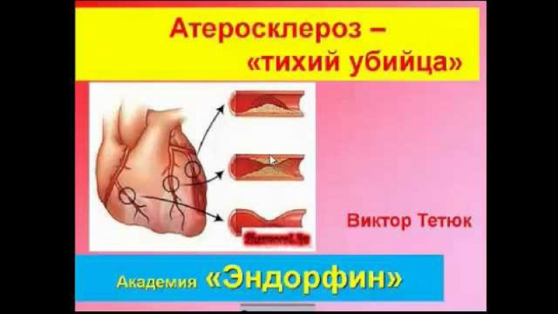 ***Как избавиться от атеросклероза Эндорфинотерапия.