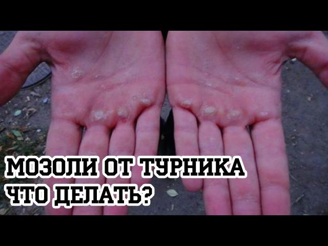 Мозоли от турника Что делать Антон Кучумов 100 дневный воркаут День 17