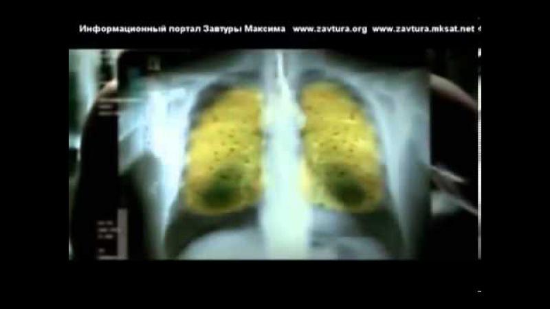 Научный фильм «Правда о табаке и как бросить курить»