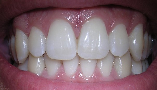 Dişlerdeki Çürük Oluşumunda Tükürük Etkisi