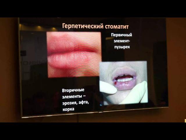 28 02 15 Тактика врача стоматолога при заболеваниях слизистой оболочки полости рта