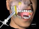 инфильтрационная анестезия верхней челюсти anesthesia of the upper jaw
