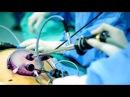 SILS-холецистэктомия (лапароскопическое удаление желчного пузыря единым доступом)