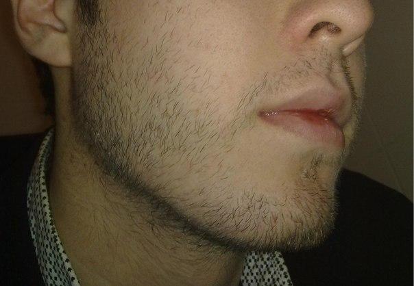 Волосы растут на бороде у женщины что делать