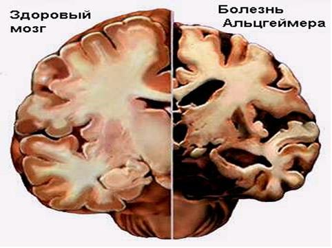 Как избежать болезни Альцгеймера