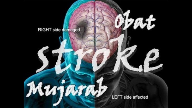 Obat Stroke Mujarab dan Obat Stroke Ampuh dengan Obat Stroke Nasa смотреть онлайн без регистрации