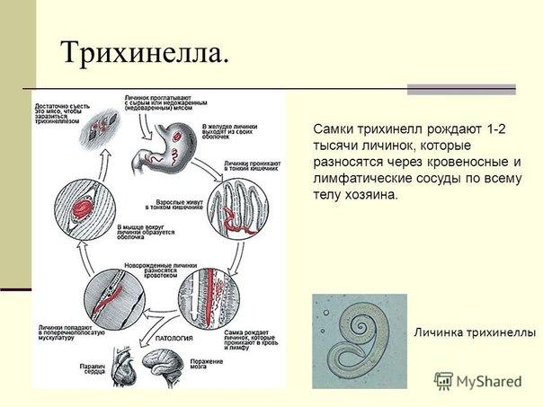 санатории от паразитов