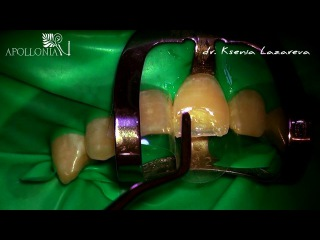 Dr.Ksenia Lazareva. Amazing direct restorations www.tc.apollonia.ua
