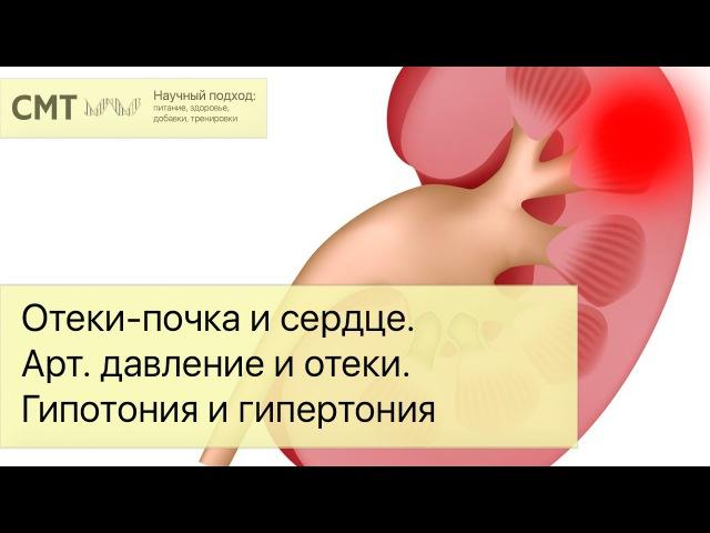 Отеки-почка и сердце. Артериальное давление и отеки. Регуляция гипотонии и гипер...