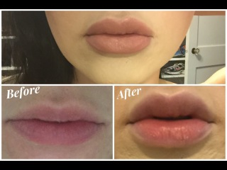 How To Get Full Juicy Lips w/out Injections: Fullips Review