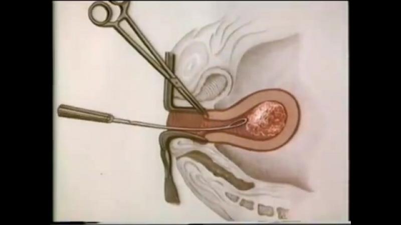 inclinic abortion procedure abortion methods - 800×450