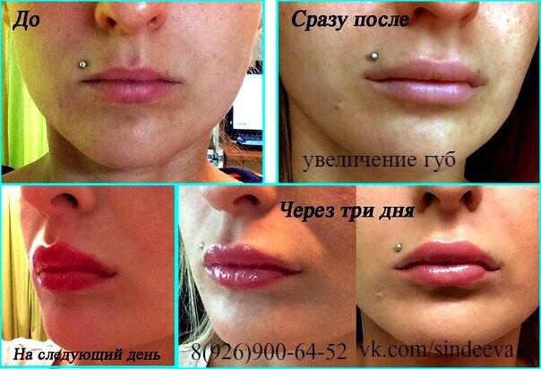 Уменьшить губы после увеличения гиалуроновой