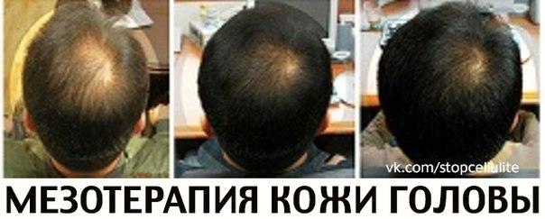Болит макушка головы и выпадают волосы