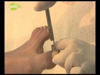 Коррекция вросшего ногтя   метод подофикс