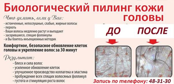 Пилинг кожи головы в домашних условиях рецепт