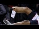 Fratura exposta na NCAA - Kevin Ware breaks leg - Louisville - Injury