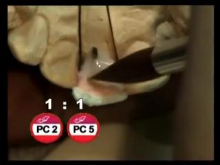 Duceram Kiss.Техника нанесения массы. Стоматология.Часть1.