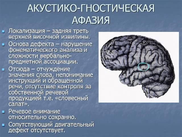 Лекция Афазия диагностика и лечение Ekaterina Drozdova