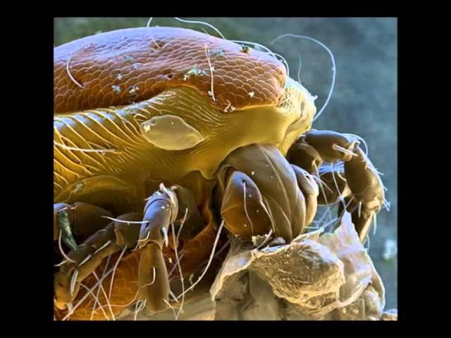 Микроорганизмы под микроскопом - корпорация монстров отдыхает