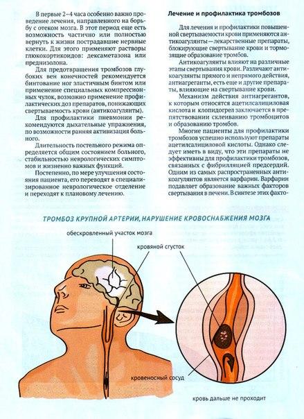 инсульт статины